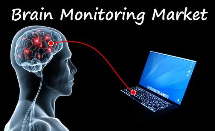 Brain monitoring market