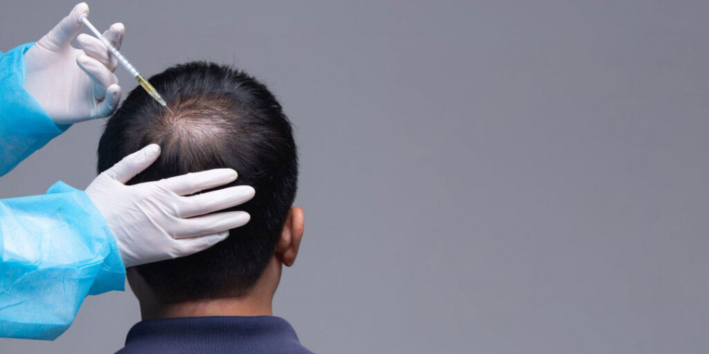 PRP-injection-into-your-scalp