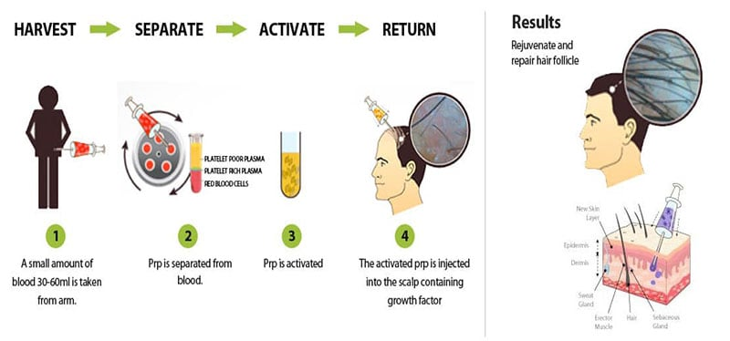 prp-hair-treatment-cost